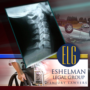 Medical Malpractice Lawyers in Akron Ohio, Eshelman Legal Group