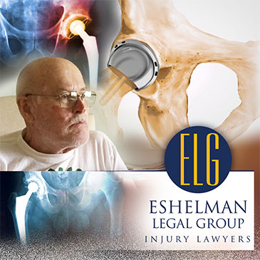 Stryker Hip Replacement Recall Lawsuit, Eshelman Legal Group