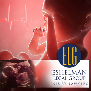 Zofran Birth Defects Lawsuit, Eshelman Legal Group